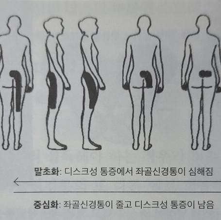 좌골신경통과 방사통