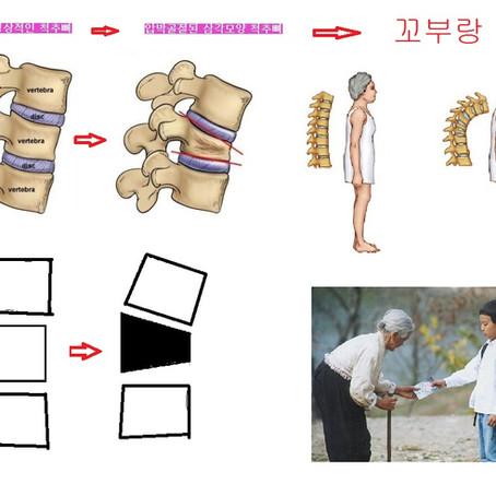 허리골절치료는 보조기가 핵심입니다.