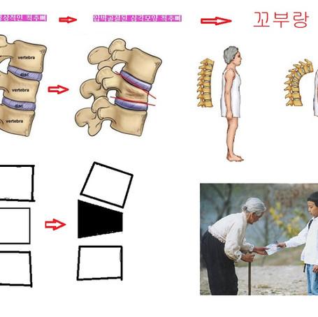 척추골절의 장기적대처