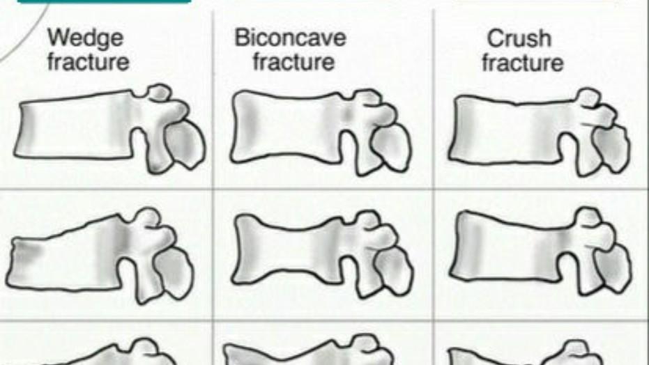 척추압박골절 치료, 골시멘트 안해도 됩니다 라고 말하는 병원 있나요?