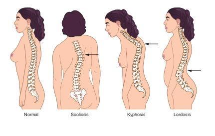척추불균형
