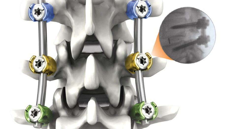허리통증과 척추부정렬