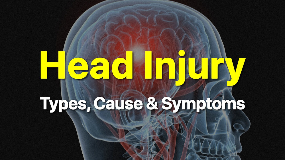 Head injury: Types, Causes & Symptoms