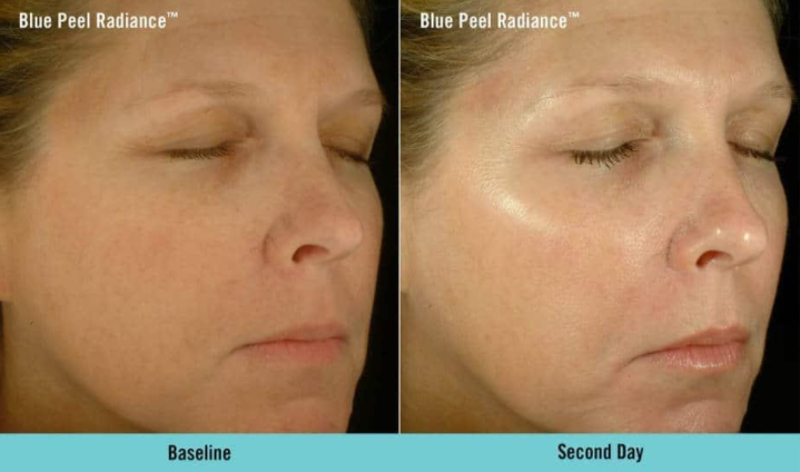 Obagi blue radiance peel images before and after