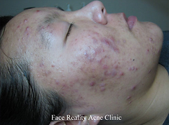 Facials & Beyond acne before and after.p
