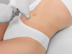 Why have Laser Resurfacing for the Body?