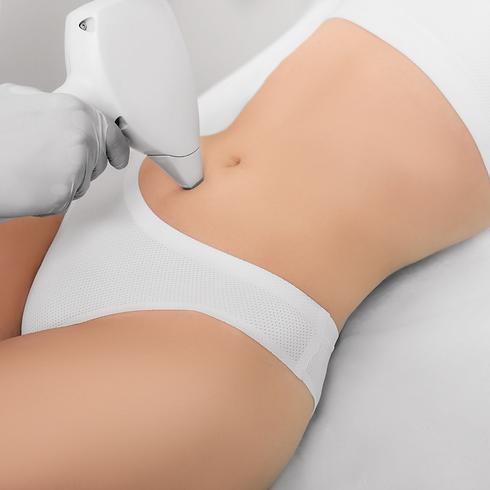 Body laser resurfacing - Fiji Skin Clini