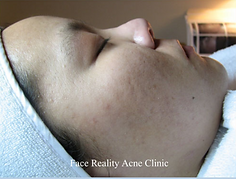facials & beyond texas acne before and a
