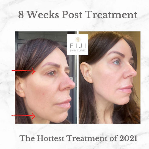 Hifu treatment before & after images