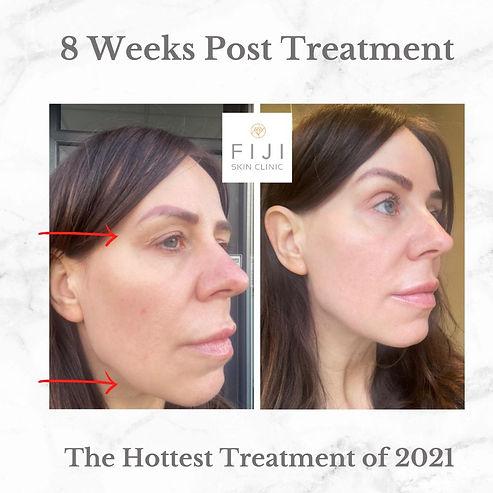 Hifu before & after - Fiki Skin Clinic B