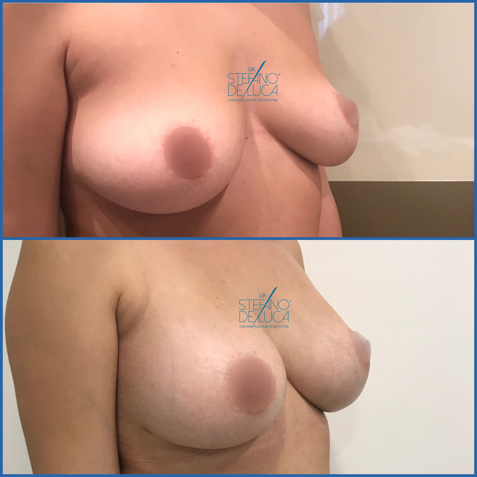 Impianto protesi, aumento del seno, mastoplastica