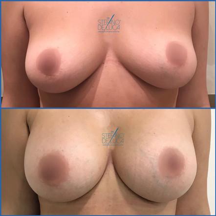 Mastoplastica, aumento del seno