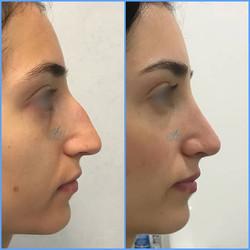 Pre e post #rinoplastica con tecnica a ultrasuoni