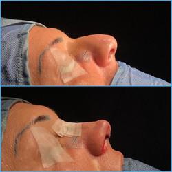Post operatorio immediato di rinoplastica