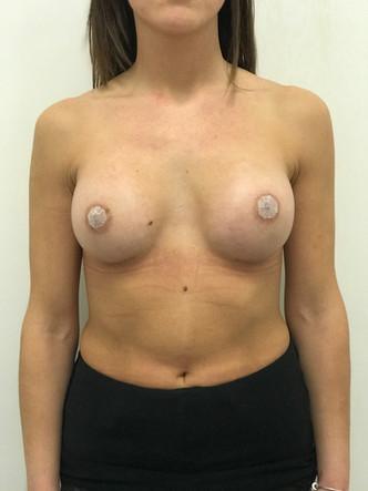 Mastoplastica additiva - Aumento del seno