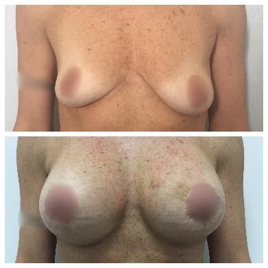 Aumento del seno, masrtoplastica