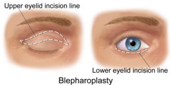Blefaroplastica e correzione borse oculari