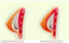 Mastoplastica additiva, aumento seno, aumento mammario, protesi mammarie, protesi seno, dott Stefano De Luca Chirurgo Plastico Napoli, drstefanodeluca.com, chirurgia estetica, chirurgia plastica napoli, chirurgia del seno, sottoghiandolare, sottomuscolare