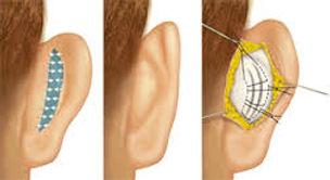 Otoplastica , orecchie a sventola , chirurgia orecchie, orecchie prominenti, padiglione auricolare, chirurgo plastico orecchie