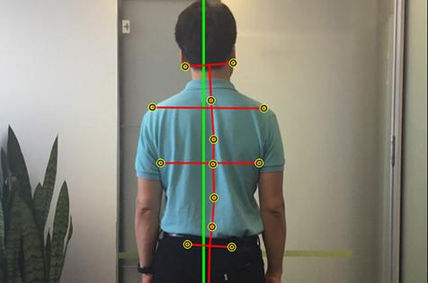 Posture-Correction in Cremorne. Postural Scans