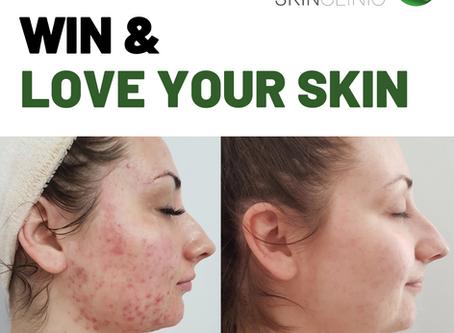 Win & Love Your Skin with Skin4u