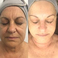 Pigment & Ageing