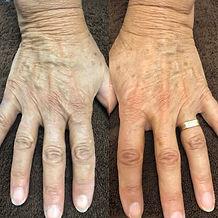 laura hands.JPG