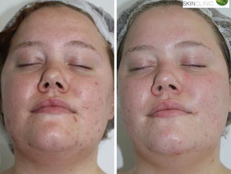 Imogen's Skin4U Skin Journey