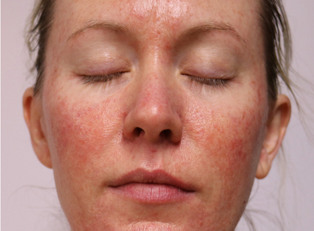 REAL issues, REAL results - A SKIN DIARY by CLARE ELSWORTH