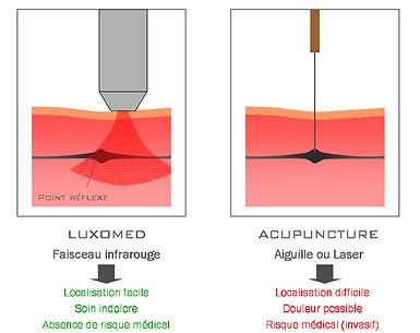 Schéma de comparaison entre la Luxopuncture et l'Acupuncture