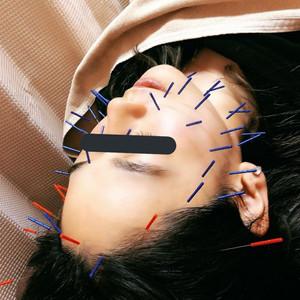 山田鍼灸接骨院様に新規導入いただきました!