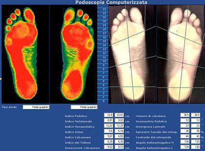 Baropodometria al piede
