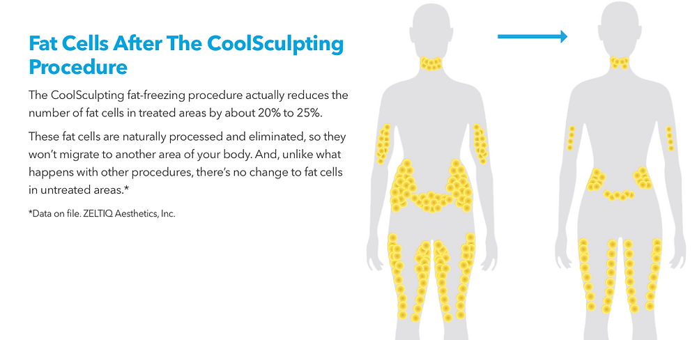 Fast Cells After CoolSculpting