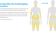 CoolSculpting vs. Normal Weight Loss