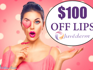 Pucker Up this Valentines Day with Juvederm