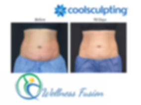 Wellness Fusion, CoolSculpting