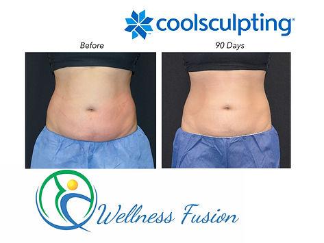 Wellness Fusion, CoolSculpting