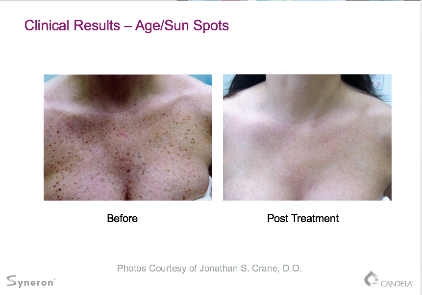 Laser Hair Removal   Boise, ID