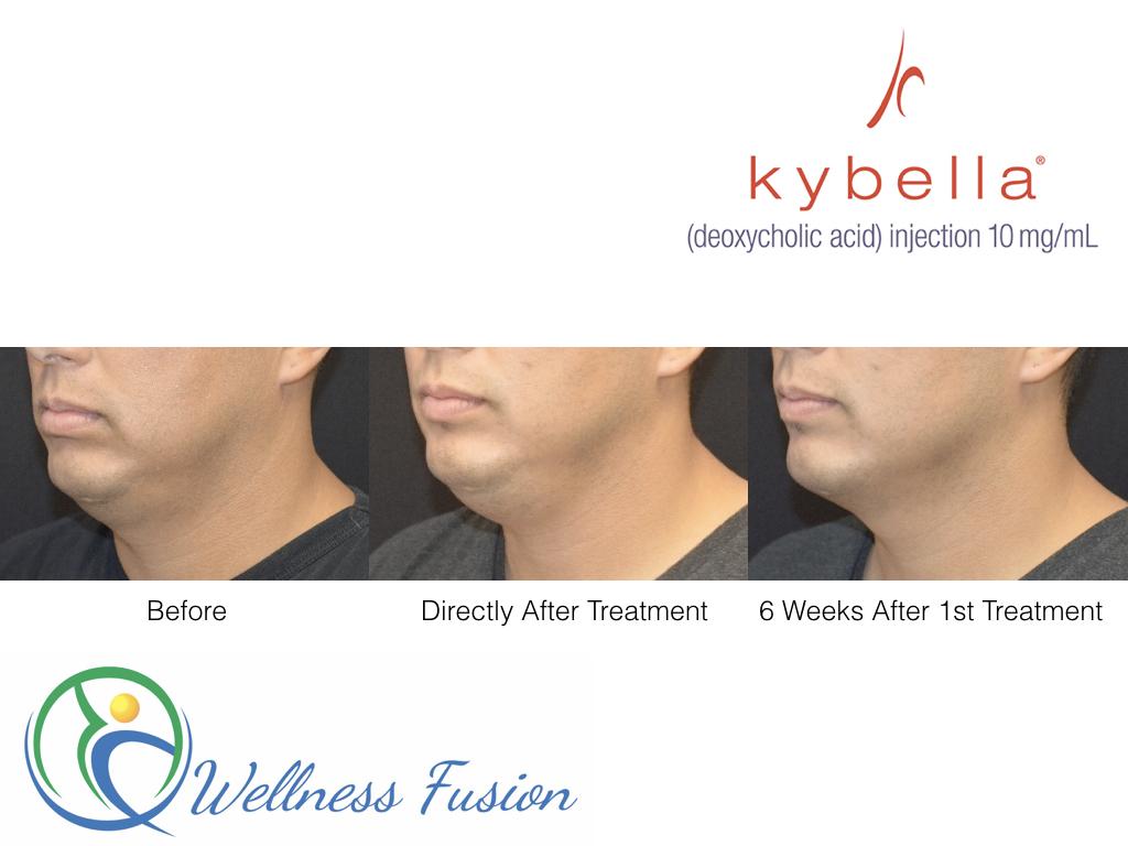 Kybella Results