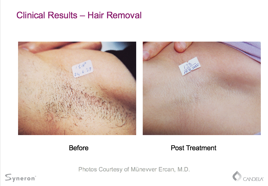 Laser Hair Removal Boise Id