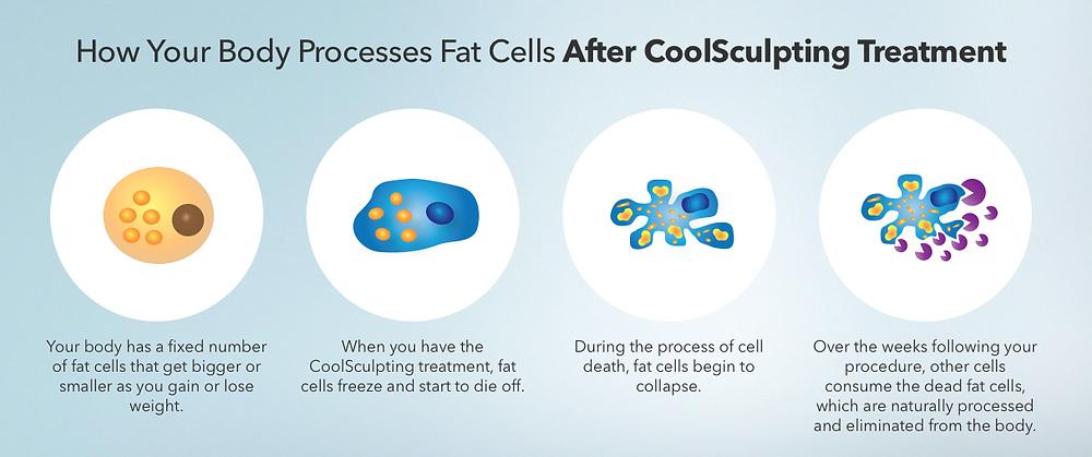 How CoolSculpting Eliminates Fat Cells