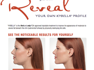 "Say, ""Goodbye,"" to your Double-Chin with Kybella"