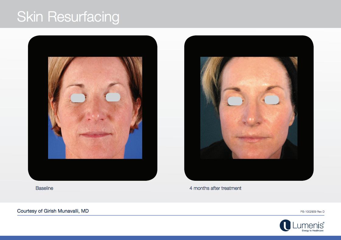 AcuPulse Laser Skin Resurfacing