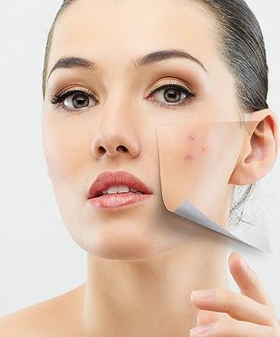 acne-image.jpg