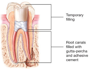 Root-Canal-Filling.jpg