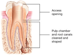 Root-Canal-Access-Opening.jpg