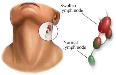 tumore linfonodi