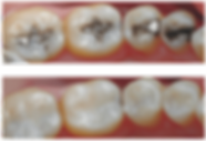Composite-Fillings.png