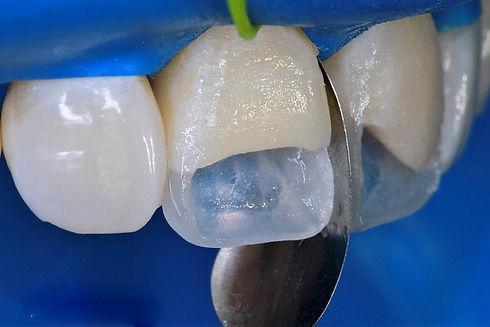 реставрация зубов в стоматологии в твери