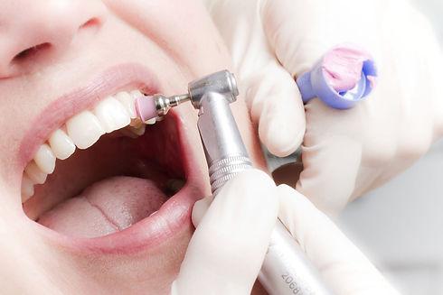 профессиональная чистка зубов в стоматологии в твери